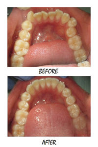 6MONTH1-200x300 milpitas cosmetic dentist