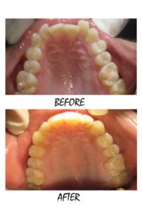 INVISALIGN1-200x300 milpitas cosmetic dentist